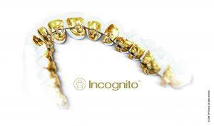 Incognito_Appliance